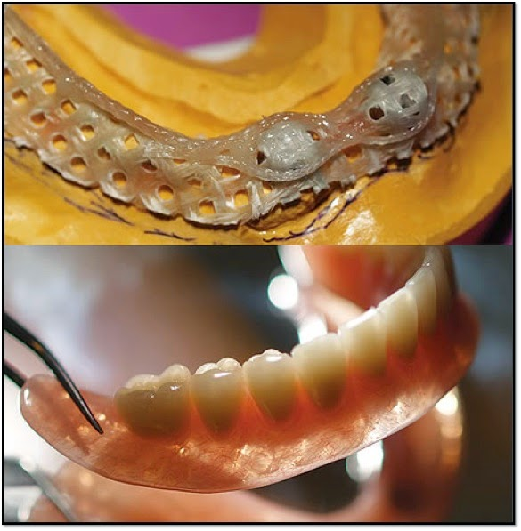 Thermoplastic resin dentures have been used in dentistry for over 50 years, and the interest in polyamide based materials (nylon) have increased