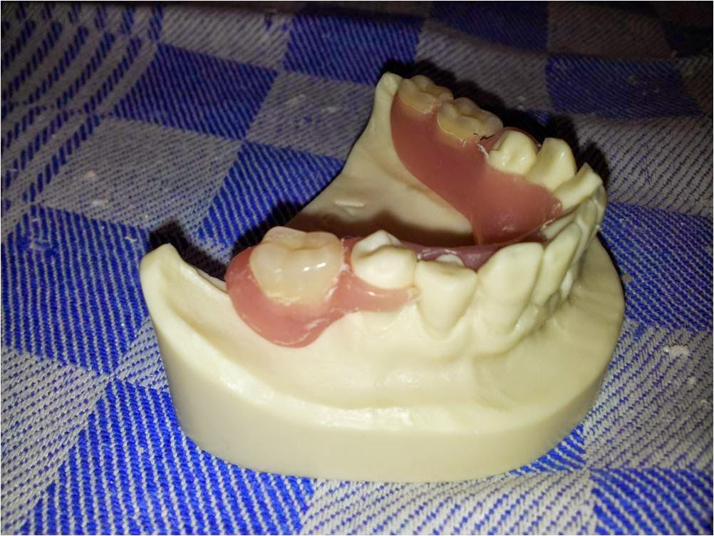 acrylic teeth Mechanical retention