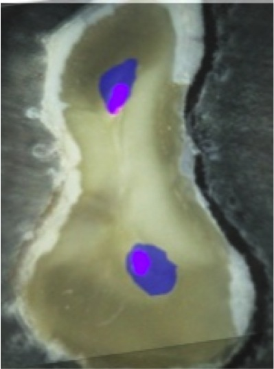 Root Canal Shaping by Continuous or Reciprocating Rotation: the ProTaper System versus the Endo-Eze Tilos System