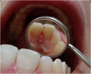 Demand for esthetic restoration is rising. 3 clinical cases of anterior stratification with composite resin Opallis treated in conservative dentistry