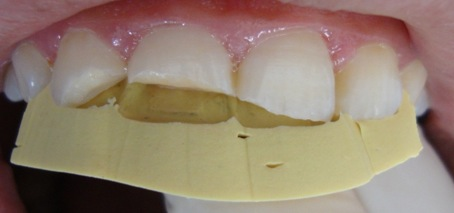 In our work, we are going to present 3 clinical cases of anterior stratification with composite resin Opallis that we have treated in conservative dentistry