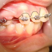 Acceleration of Orthodontic Tooth Movement for Retraction Upper Canine by Alveolar Corticotomy