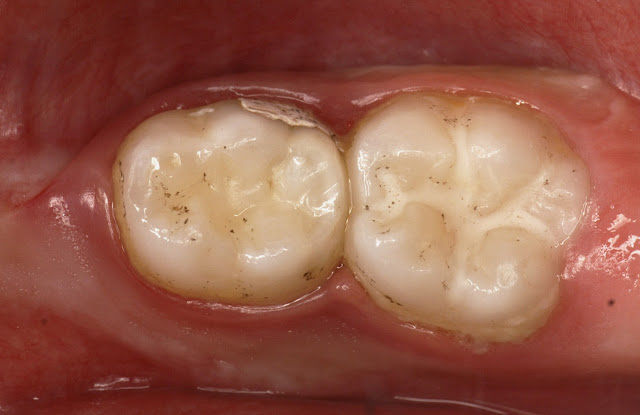 Use of Glass Ionomer Cements in Paediatric Dentistry: Clinical Cases of Application in Primary Teeth