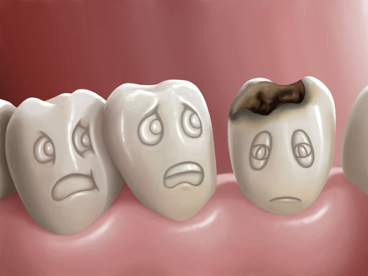 The Pharmacological Management of Dental Caries