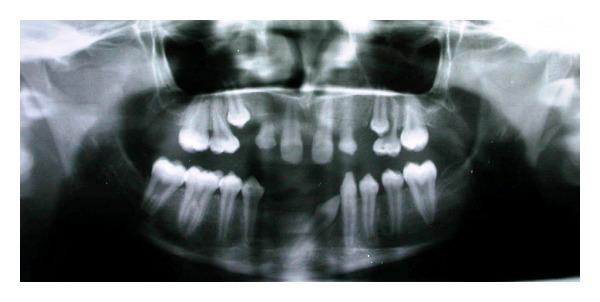 Dental Anomalies, Kuftinec, Teeth Crowding