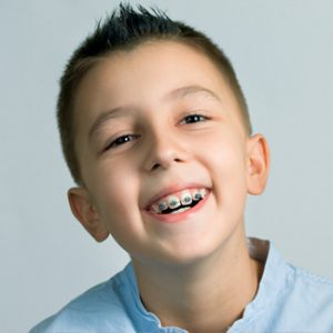 Malocclusion Orthodontic Treatment