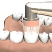 Management of Root Caries Using Ozone