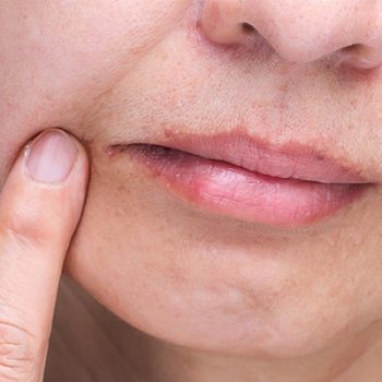 angular cheilitis natural remedies causes
