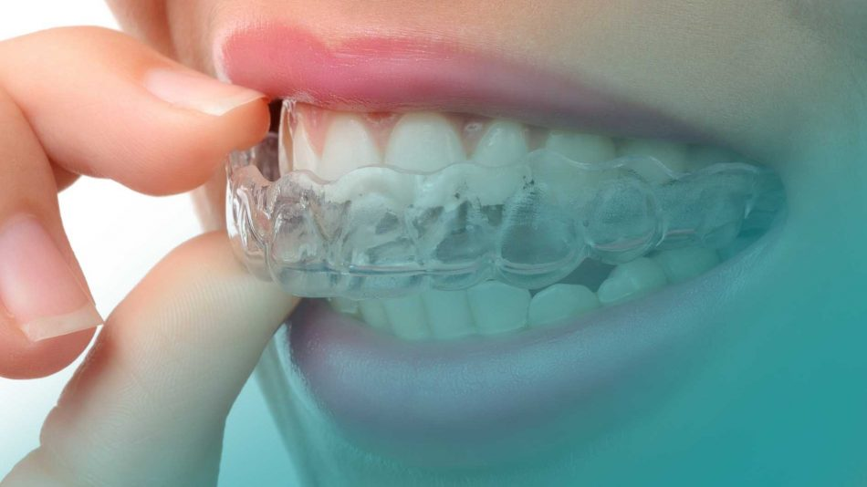 Updating the CA Clear Aligner Therapy Pablo Echarri