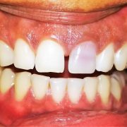 Bleaching of Non-vital Discolored Teeth: Keys of Success