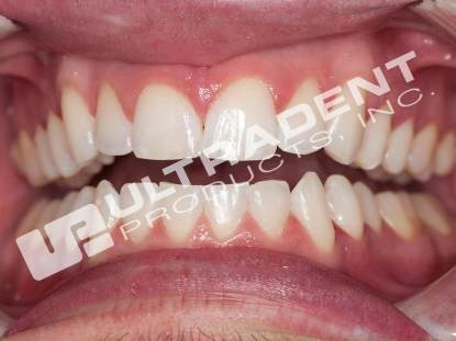 After Opalescence Go Whitening