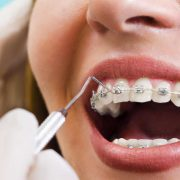 orthodontic brackets