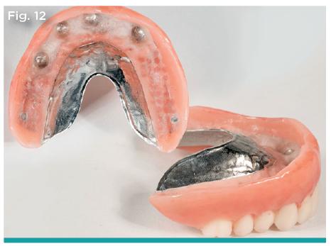 maxillary implant