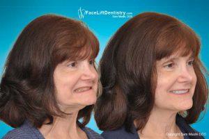 Jaw dental face fix method misaligned teeth